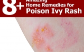 home-remedies-for-poison-ivy-rash-1024x768